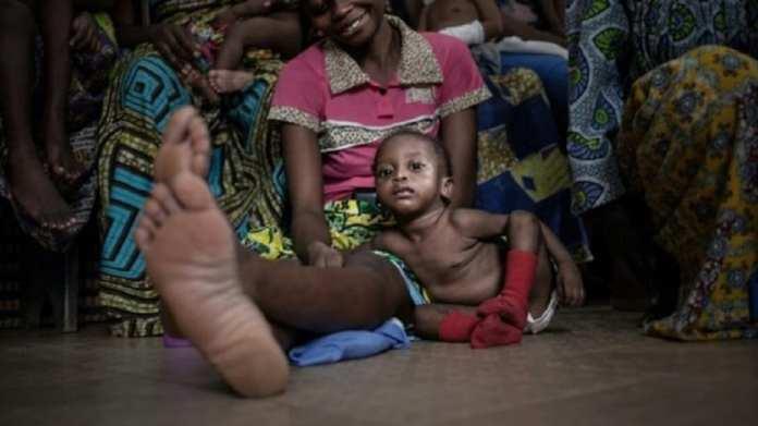 Enfants Centrafricains victimes silencieuses de la guerre:  Viol, malnutrition, sida, travail forcé dans les groupes armés 1