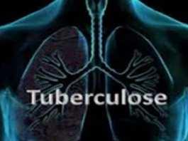 Près de 4500 personnes en meurent chaque jour du Tuberculose (OMS)