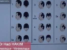 [Bulletin de santé] Calvitie, alopécie… : La coiffure indésirable !