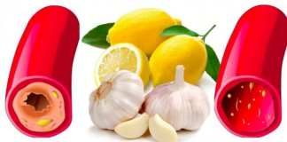 Les bienfaits du citron, l'ail et le gingembre sur la santé