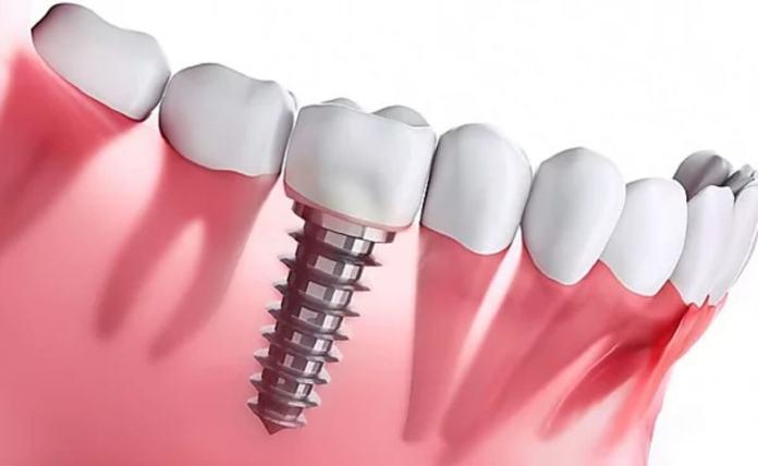 Ce qu'il faut savoir sur les implants dentaires