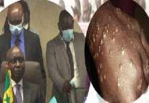installation-d-idrissa-seck-et-la-maladie-des-pecheurs-en-exergue