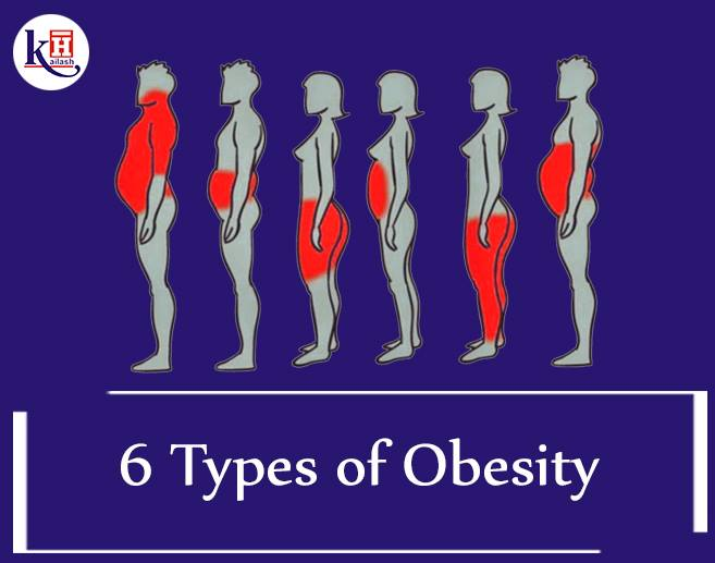 6 Types of Obesity and Solutions to overcome each