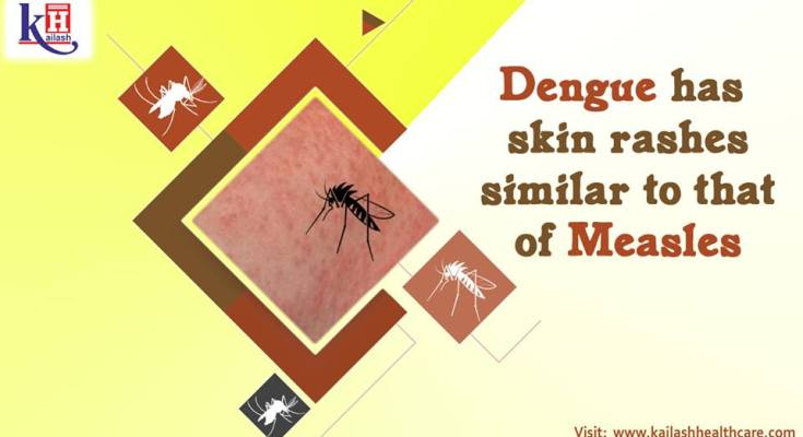 Dengue has skin rashes similar to that of Measles