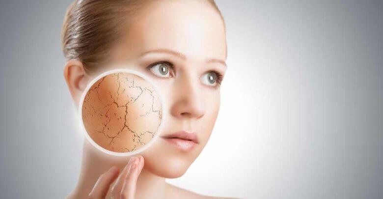 Révision examen : La peau sèche alipidique