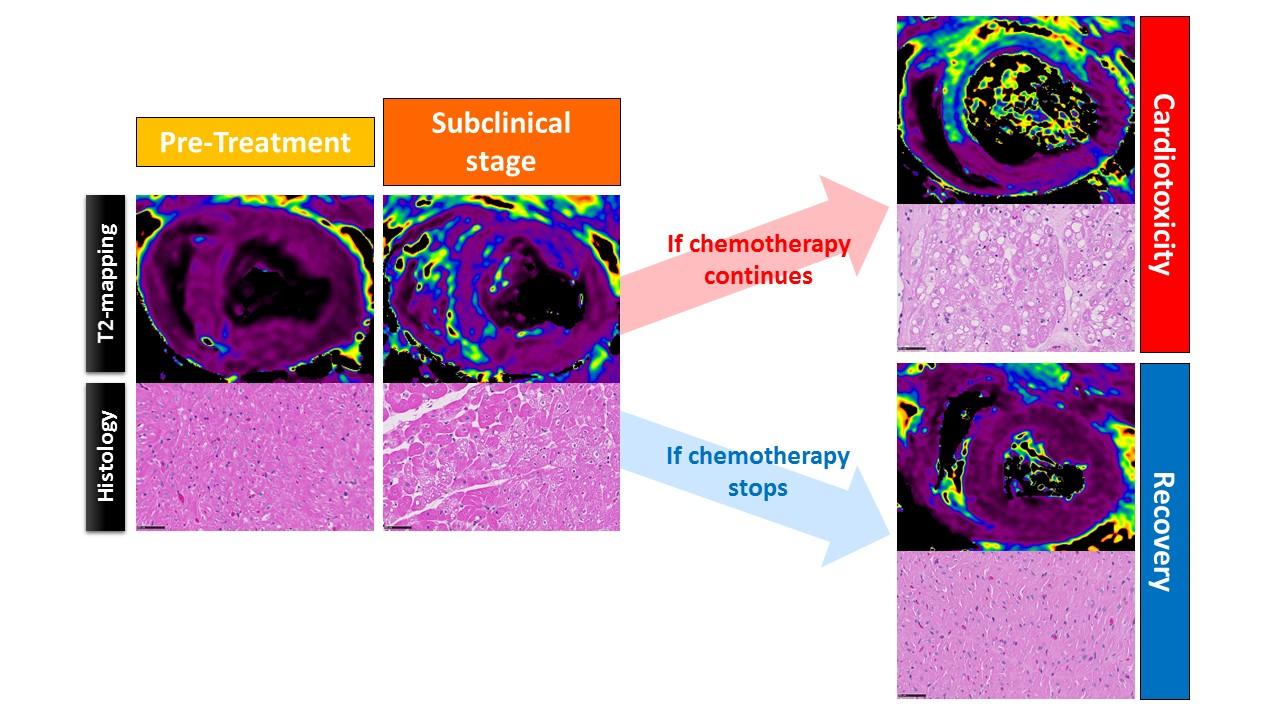 Identifican un marcador muy precoz de daño cardíaco vinculado al tratamiento del cáncer