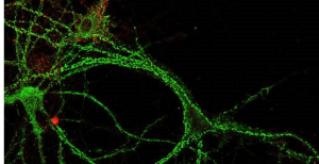 Neuronas del hipocampo