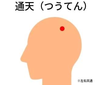 頭皮のツボ:通天(つうてん)