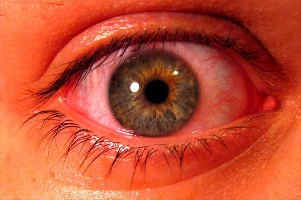 Mata Merah (Konjungtivitis)