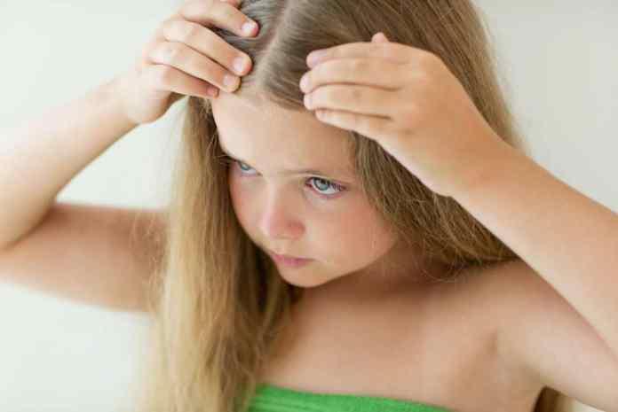 حيل سحرية للتخلص من قمل الشعر للاطفال