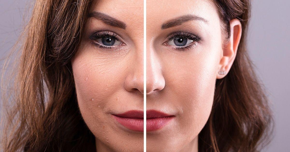 ماسكات لزيادة الكولاجين في الوجه