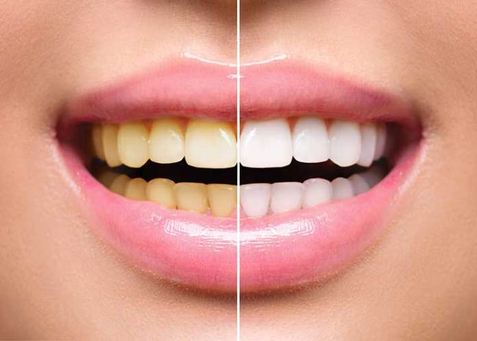 ما هي أضرار تبييض الأسنان بالزوم ؟