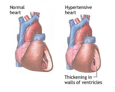 hypertension_2