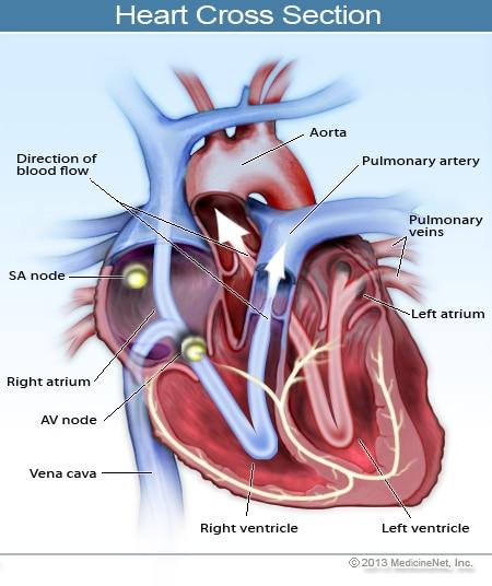 wheelchair-heart-congestion-cross-section