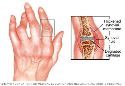 wheelchair_rheumatoid-arthritis
