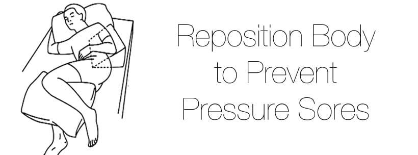 reposition body to prevent pressure sores