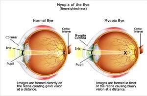 Myopia Explained