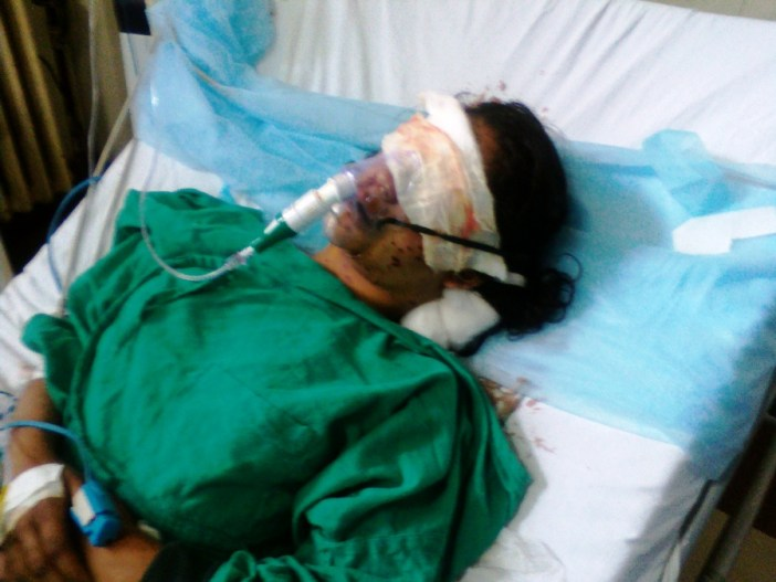 Insha while battling for her life in SMHS's ICU. (Photo: Ubeer Naqushbandi/KL)