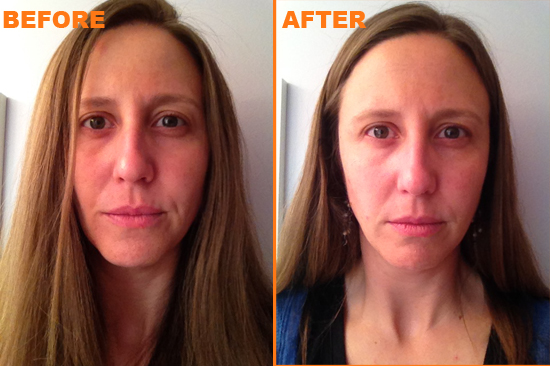My before and after pictures, showing the difference of one week of using ERA Ageless antiaging skincare products.