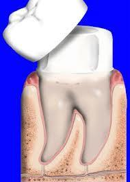 Crown Sunshine Coast Dentist