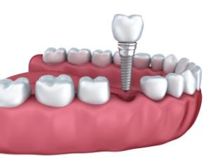 sunshine coast dental implants