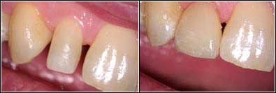 before and after small tooth sunshine coast dentist