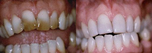 before and after stain kawana dentist