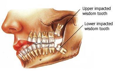 Kawana Dentist Wisdom Teeth Removal
