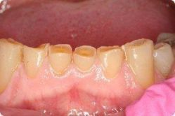 Worn teeth before bonding