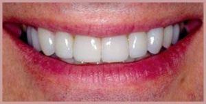 After porcelain dental veneers