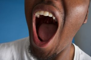 open mouth for tooth extraction