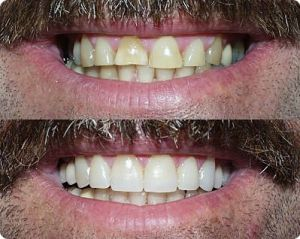 makeover your smile with porcelain veneers