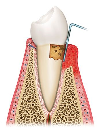 Scaling and planing can be an effective way to treat and prevent the progression of periodontal disease.