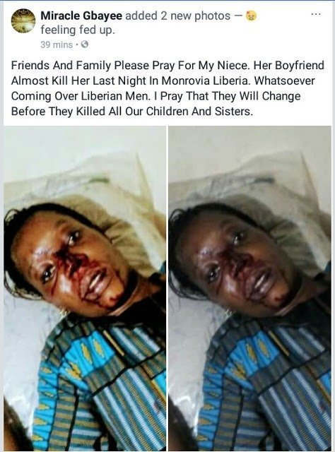 Lady almost beaten to death by her army boyfriend
