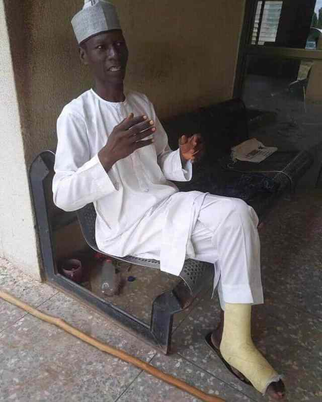 Man who trekked from Yola to Abuja in celebration of Buhari develops leg injury