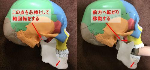下顎骨のずれ
