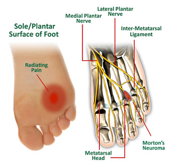 graph chart labels foot nerve metatarsal ligament plantar morton's neuroma radiating pain