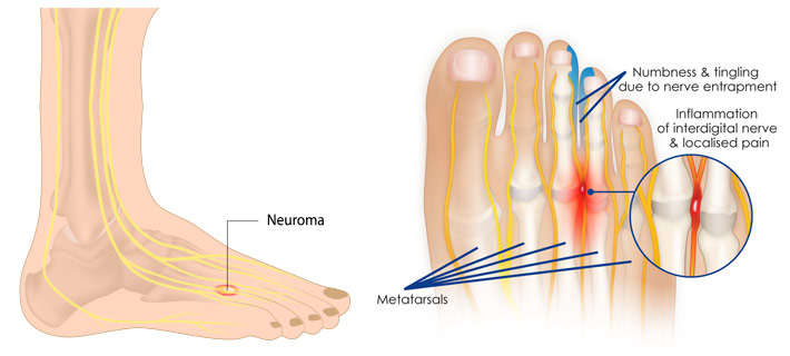 foot diagram neuroma metatarsals nerve pinch and damage foot pain