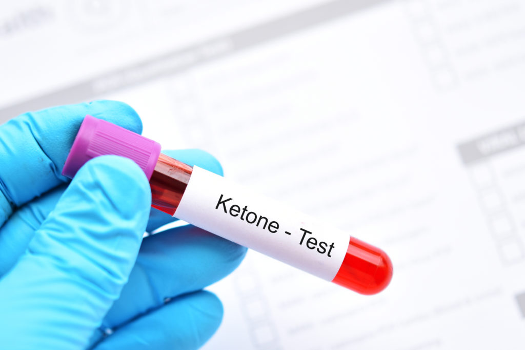 Worried About Ketones: 10 Signs You're in Ketosis