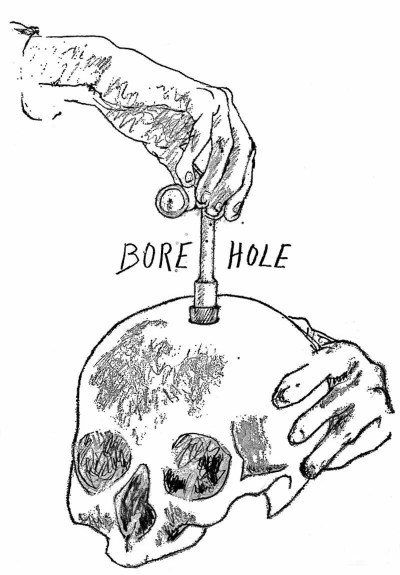 brain hole: not exactly as illustrated