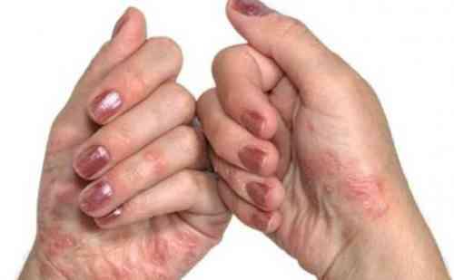 जानिए क्या है सोरायसिस, कैसे होती ये खतरनाक बीमारी