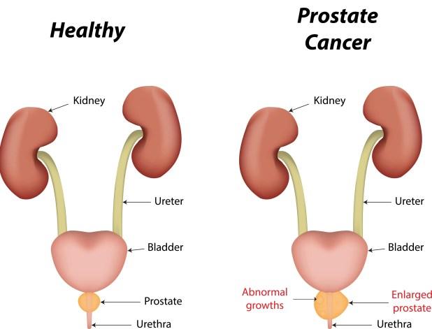 Symptom of prostate cancer