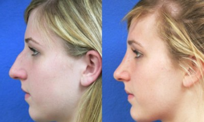 Chin Implant Before and After