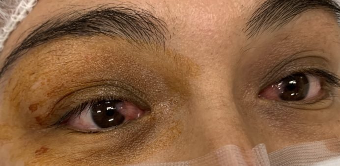 Bilateral Pterygium in a young lady being prepped for surgery