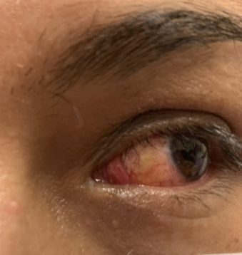Beautiful result after surgery eye operation