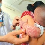 Bệnh sởi và hình ảnh Bộ Y tế