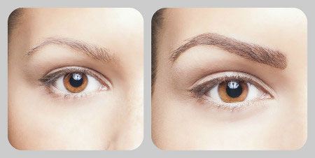 brow-extension