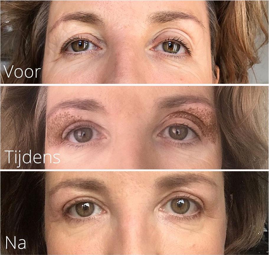 Plexr oogcorrectie Cosmetisch arts, cosmetische behandelingen. Erkend en geregistreerd