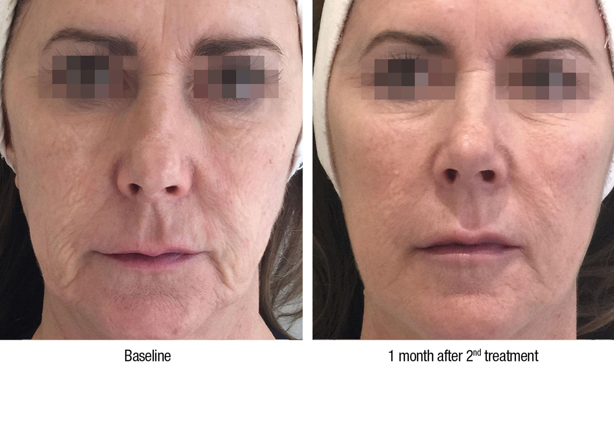 Profilho - Cosmetisch arts, cosmetische behandelingen. Erkend en geregistreerd