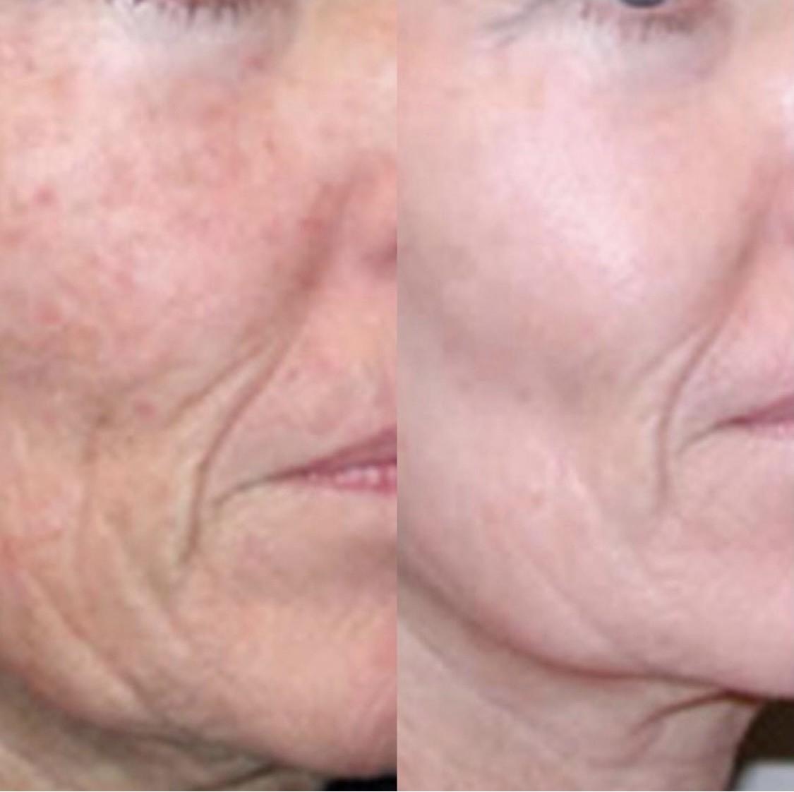 Cosmetische behandelingen Zuid Holland - Cosmetisch arts